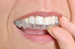 clear braces for straightening treatment