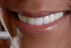 Newbury Park cosmetic dentist