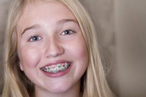 A girl smiling with metal braces.