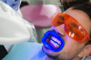 Man receiving Zoom ! teeth whitening