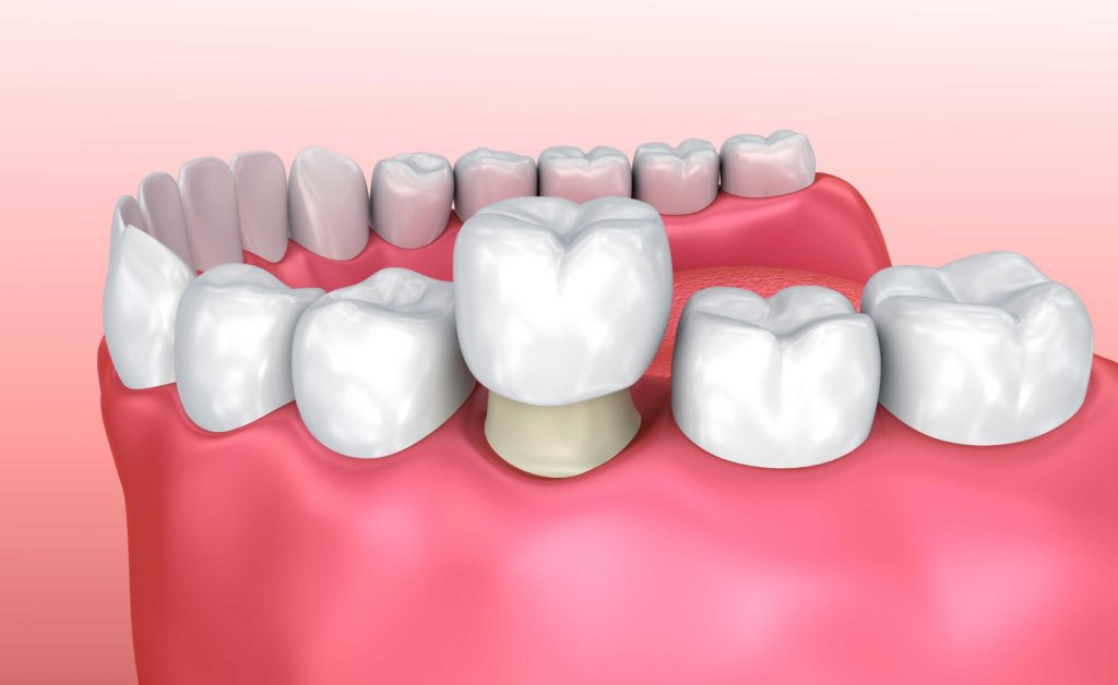 Digital image of a dental crown